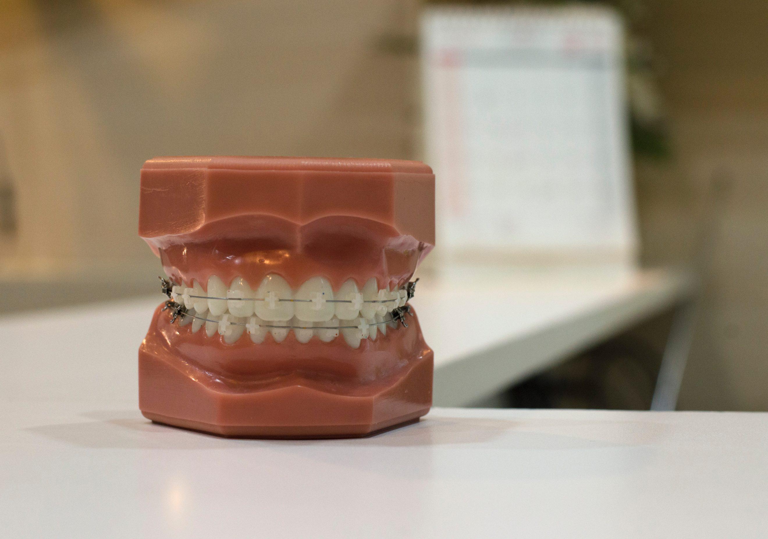 Le travail de l'ostéopathe en accompagnement à l'orthodontie